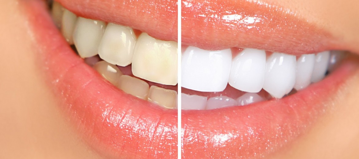 teeth whitening city dental centre