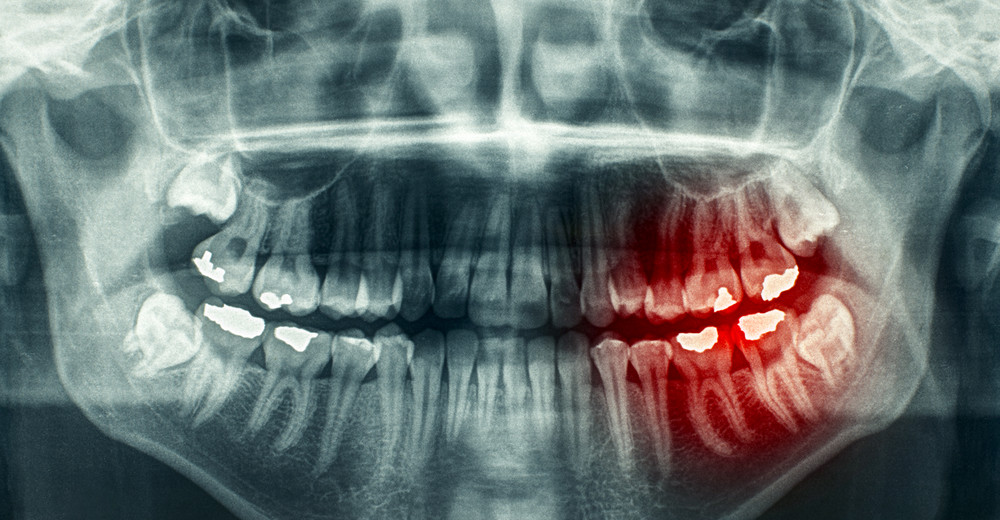 how often should your teeth be x-rayed