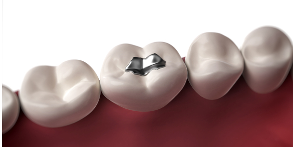 advantages of dental amalgam