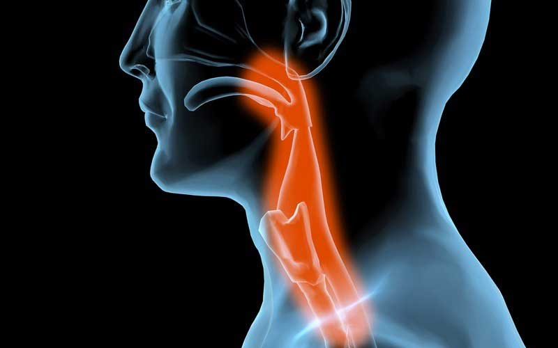 what are the causes of dysphagia